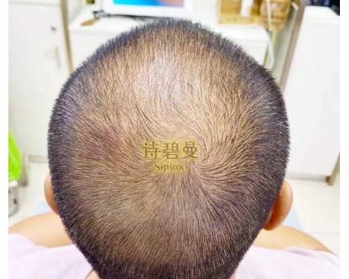 仅20次,诗碧曼化解秃头危机